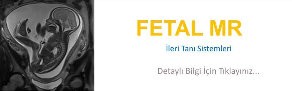 Fetal_MRI