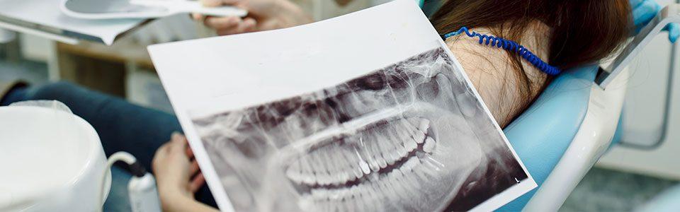 Panoramik Röntgen Çekimi